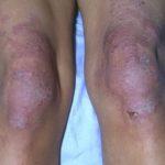дерматомиозит проявления