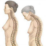 Болезнь Бехтерева - анкилозирующий спондилоартрит