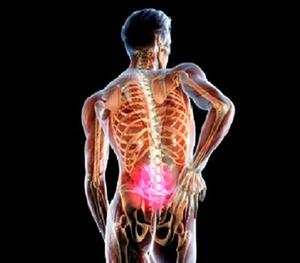 Седалищный нерв - боль отдает в ногу