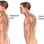 кифоз грудного отдела позвоночника упражнения