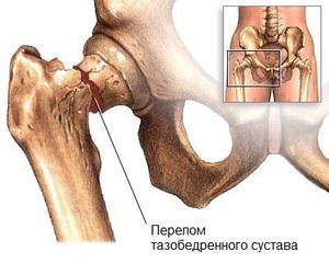 Перелом костей тазобедренного сустава