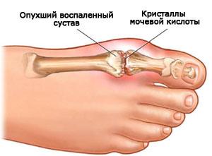 Подагрический артрит пальца