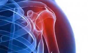 Как справиться с артритом?