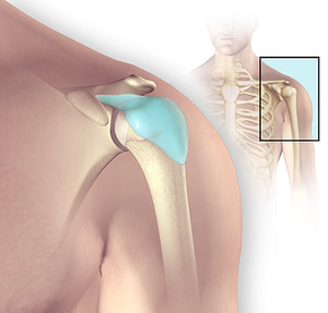 Наглядное фото бурсита плеча