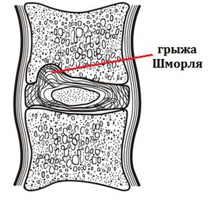 Как выглядит грыжа шморля