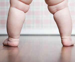 Лишний вес и суставы