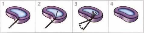 Этапы лазерного лечения грыжи диска