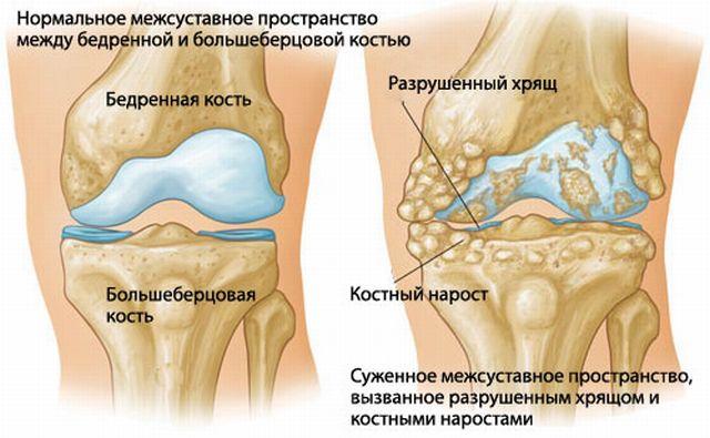 Пораженный сустав колена