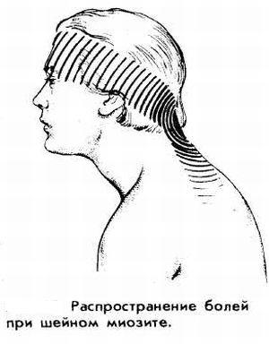 Как распространяется боль при шейном миозите