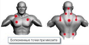 Боль мышц при миозите
