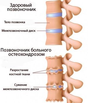 Процесс развития хондроза