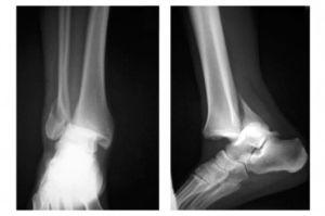 рентген перелома