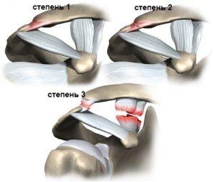 Степени расстяжения плеча