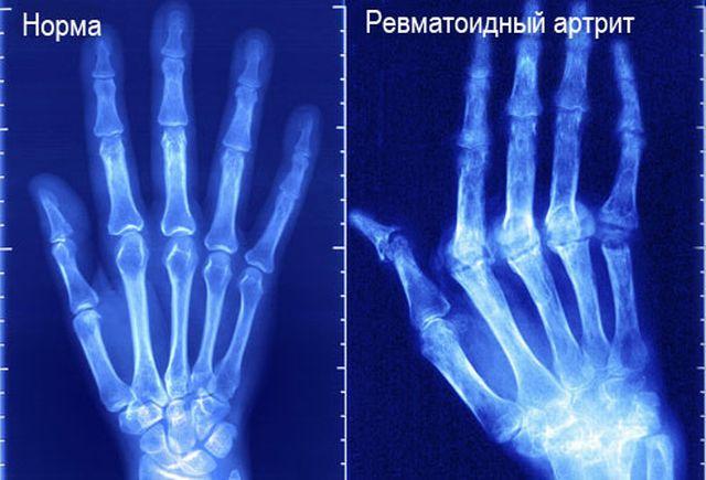рентген рук с артритом