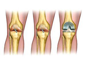 коленный сустав до и после