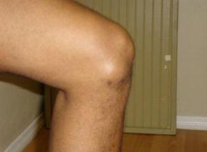 опухоль на колене