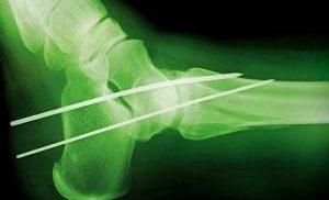 процедуры при переломе голеностопа