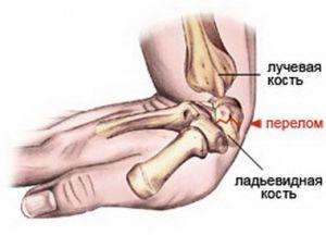 где происходит перелом кости руки