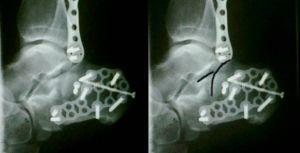 рентген перелома пятки