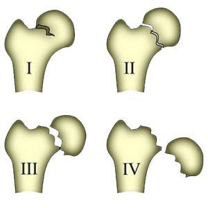 классификация переломов бедра