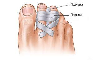 повязка на поврежденный палец