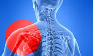 импинджмент синдром плеча