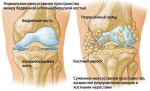 как разрушается сустав