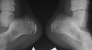 на МРТ остеохондропатия пяточной кости