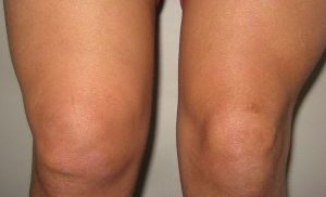 отек колена при болезни Кенига