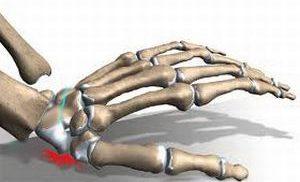 перелом кости запястья