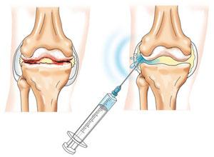 лечение сустава колена