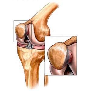 хондромоляция колена