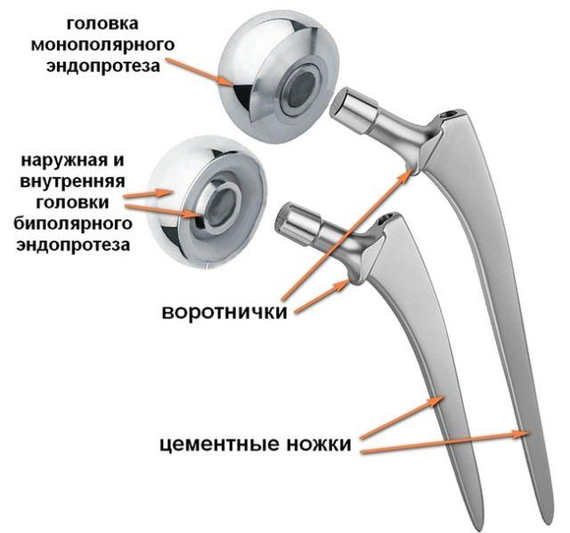 строение протеза