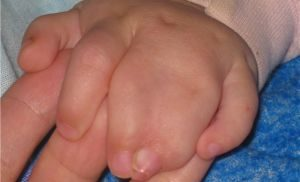 синдактилия пальцев кисти