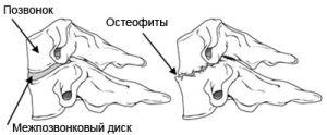 как выглядят остеофиты