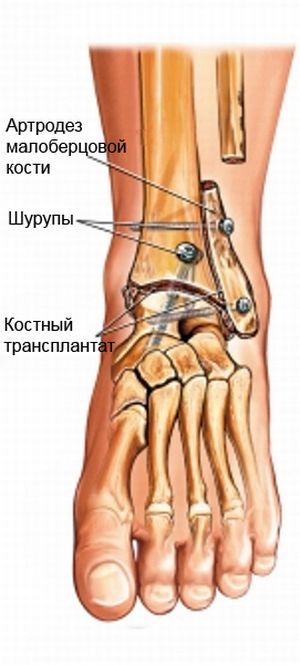 Изображение - Реабилитация после артродеза голеностопного сустава artrodez-bercovoi-kosti