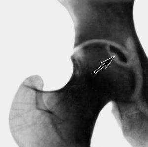 диагностика остеонекроза