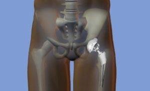 остеонекроз тазобедренного сустава