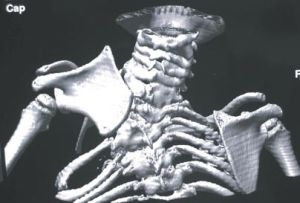рентген лопаток