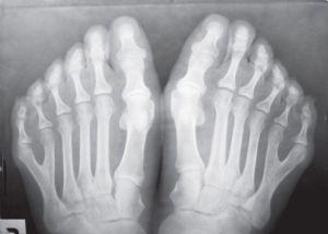 диагностика полидактилии