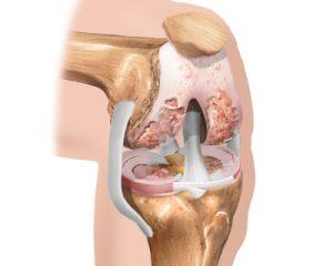 внутрисуставной артродез