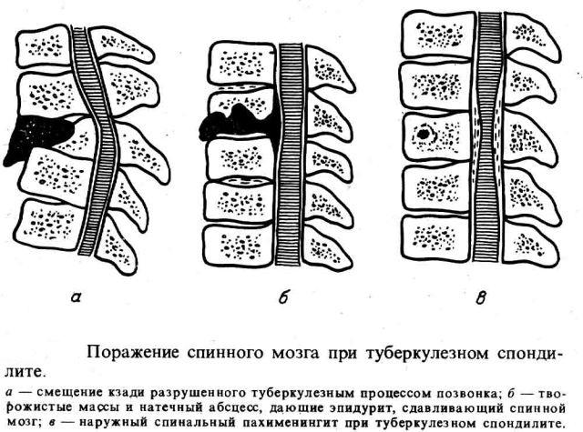 туберкулезный спондилит стадии