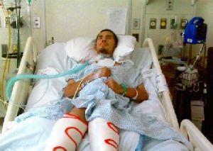 реабилитация после спондилодеза