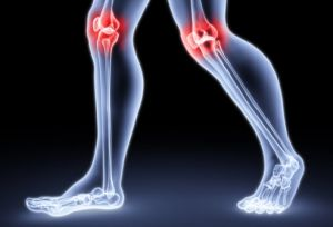 артралгия в коленях