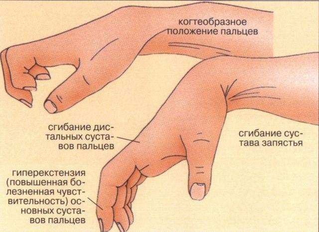 Симптомы анкилоза рук