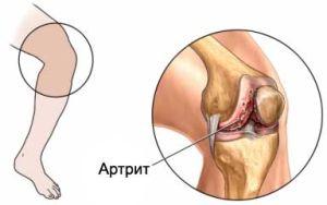 Артрит инфекиционный