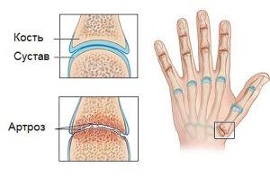 Развитие артроза пальцев рук