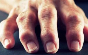 артроз пальцев рук 3 стадии