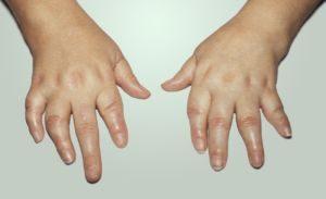 деформация пальце рук