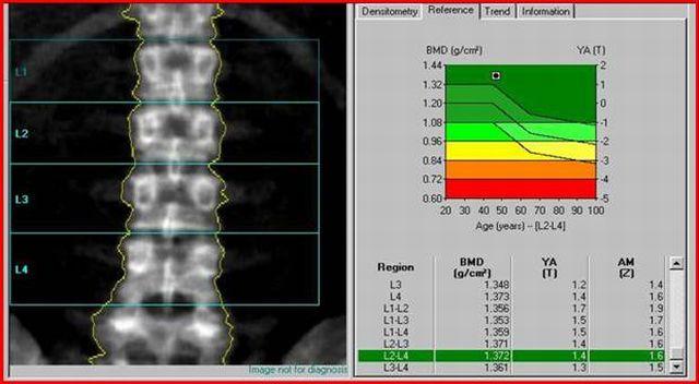 денситометрия позвоночника